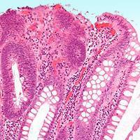 Rectoanal Polyps in Dogs Symptoms , Diagnosis and Treatment
