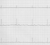 Sinus Bradycardia in Dogs Symptoms , Diagnosis and Treatment